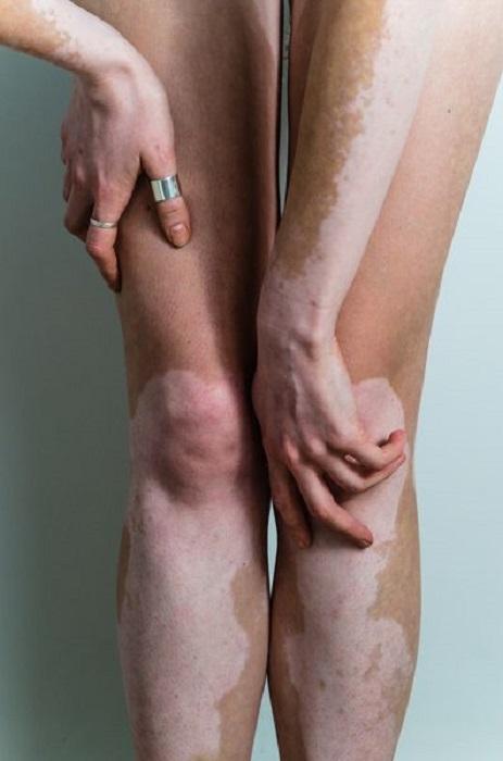 Piernas y brazos con vitiligio