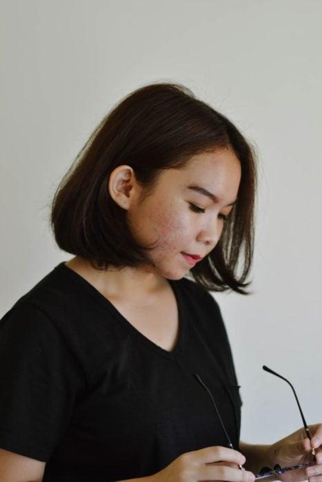 Chica con acné en la zona de la mejilla