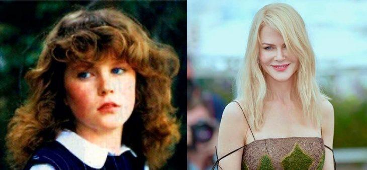 Antes y después de la fama de Nicole Kidman