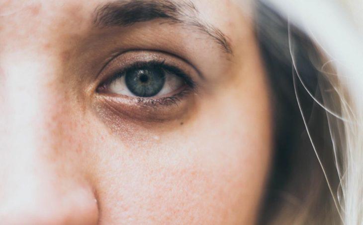 Chica con ojeras muy marcadas