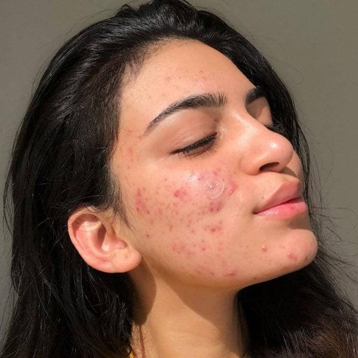Chica morena con acné en la mejilla