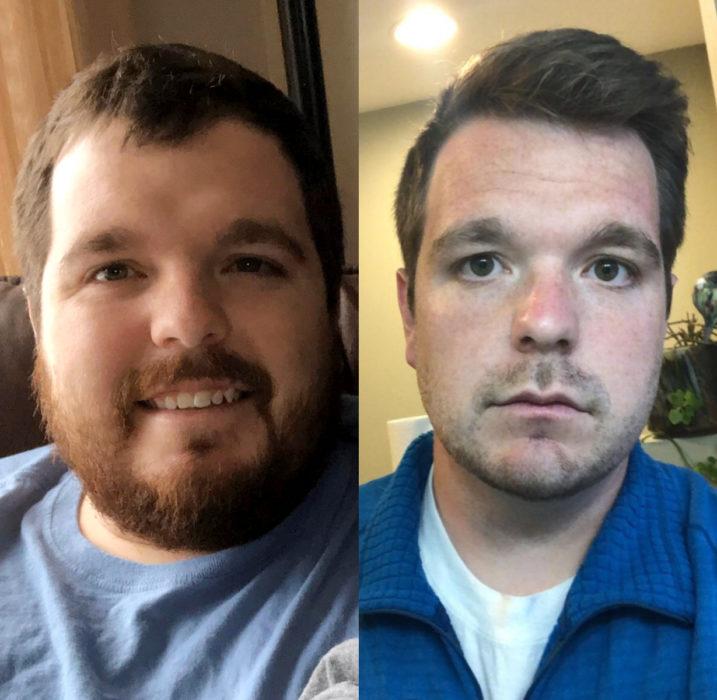 Hombre antes y después de bajar de peso