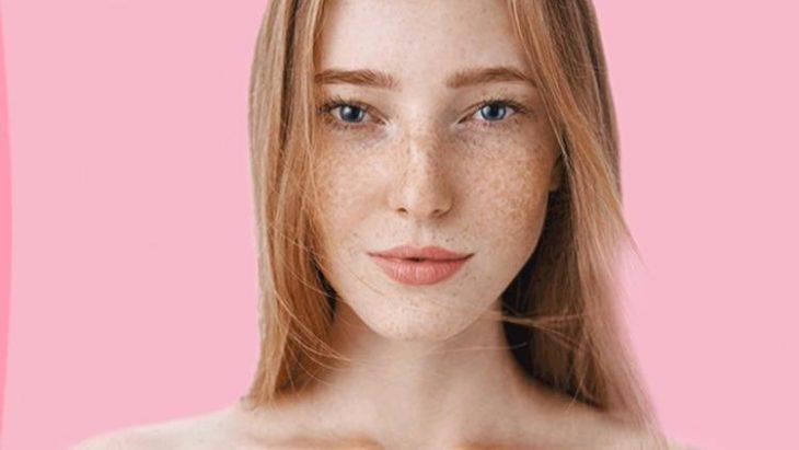 Chica con piel seca y pecas