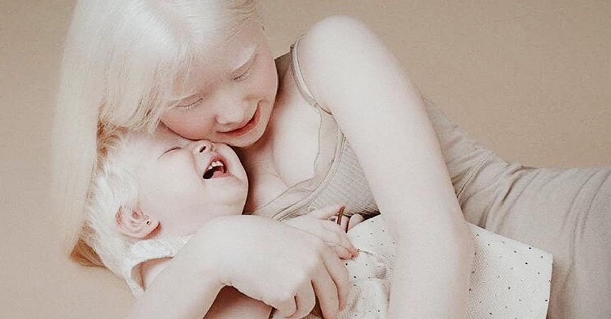 Conoce a Asel y Kamila, las hermanas con Albinismo que están causando furor