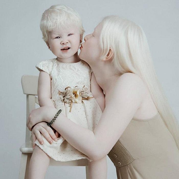 asel y kamila dos hermanas de kazajistán con albinismo
