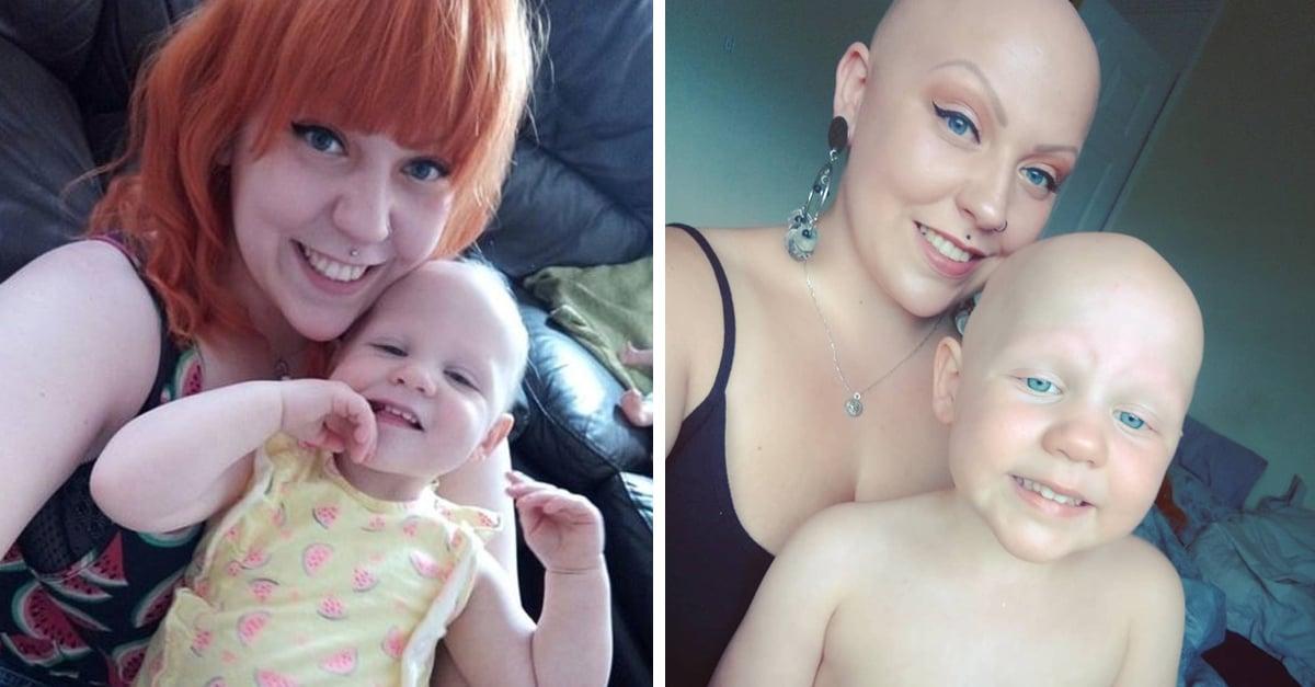 Madre e hija padecen alopecia; no les importan los estereotipos
