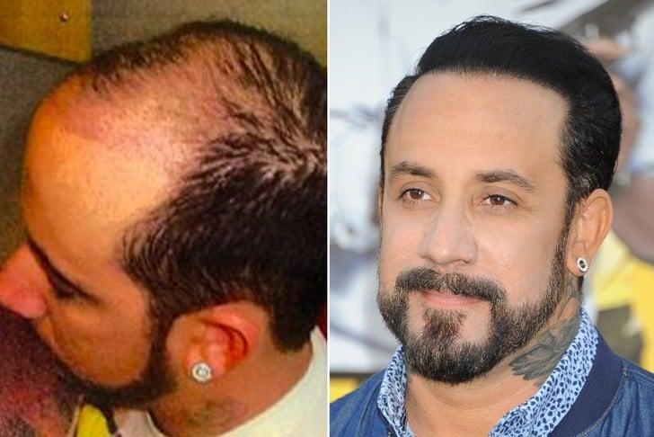 AJ McLean antes y después de su injerto de cabello