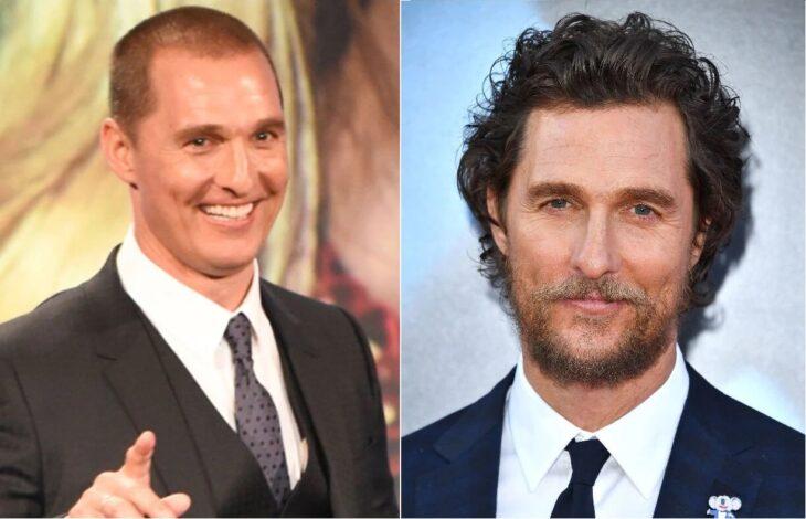 Matthew McConaughey antes y después del injerto de cabello