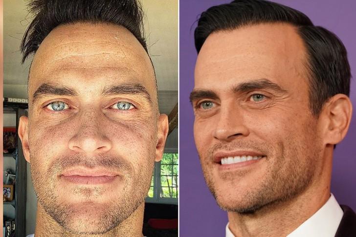 Cheyenne Jackson antes y después del injerto de cabello