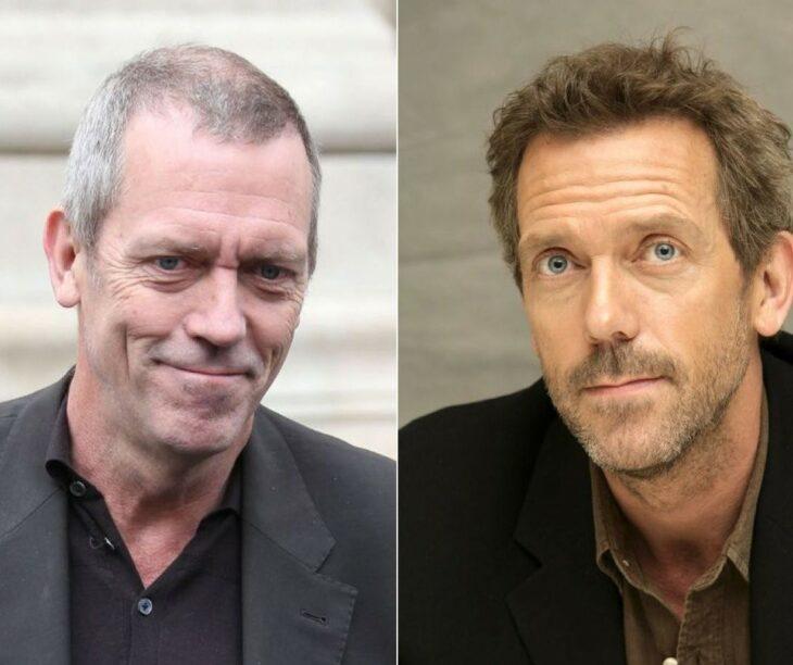 Hugh Laurie antes y después del injerto de cabello