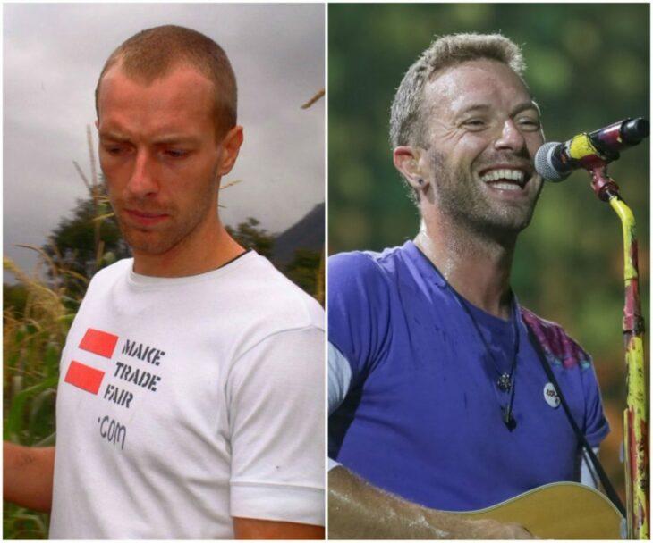 Chris Martin antes y después del injerto de cabello