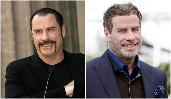John Travolta ante sy después del injerto de cabello
