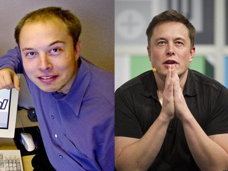Elon Musk antes y después del injerto de cabello