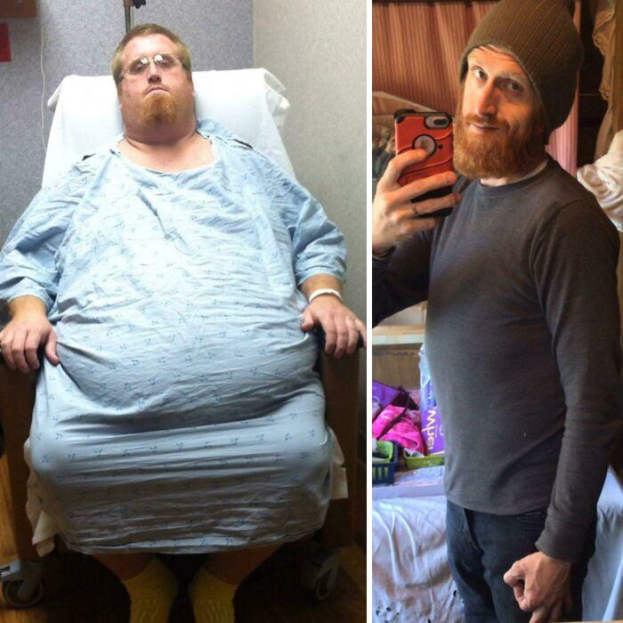 Antes y después de perder peso hombre pelirrojo con suéter gris y gorro café