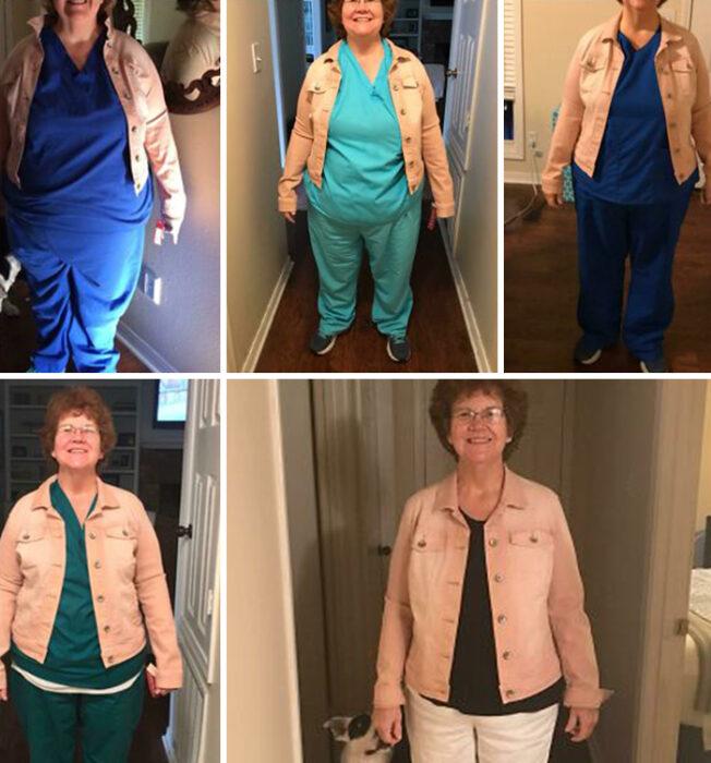 Antes y después de perder peso anciana de cabello corto castaño con traje de enfermera y chaqueta de mezclilla rosa