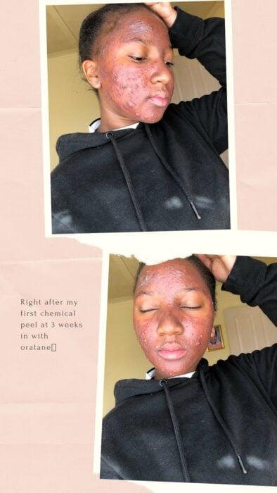 Chica negra con acné  y peeling químico