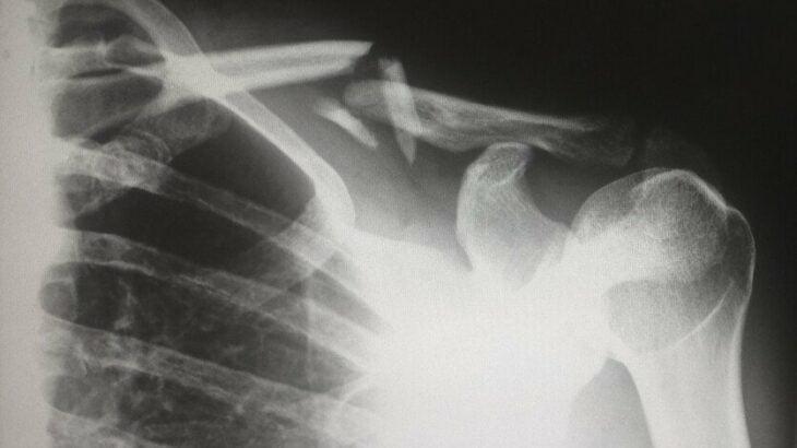 Radiografía de la fractura de un hombro