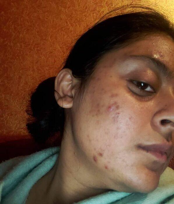 Chica morena se toma selfie sin maquillaje mostrando sus imperfecciones