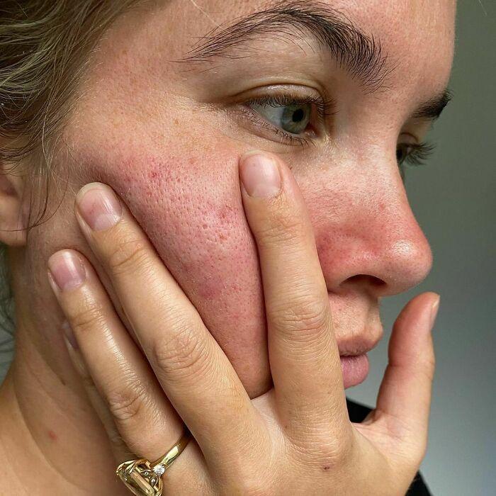 Chica de piel clara y ojos grises se toma selfie mostrando sus poros grandes en las mejillas