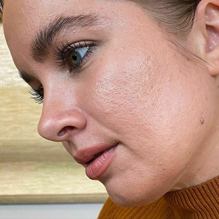 Close up de chica con piel clara mostrando sus poros grandes