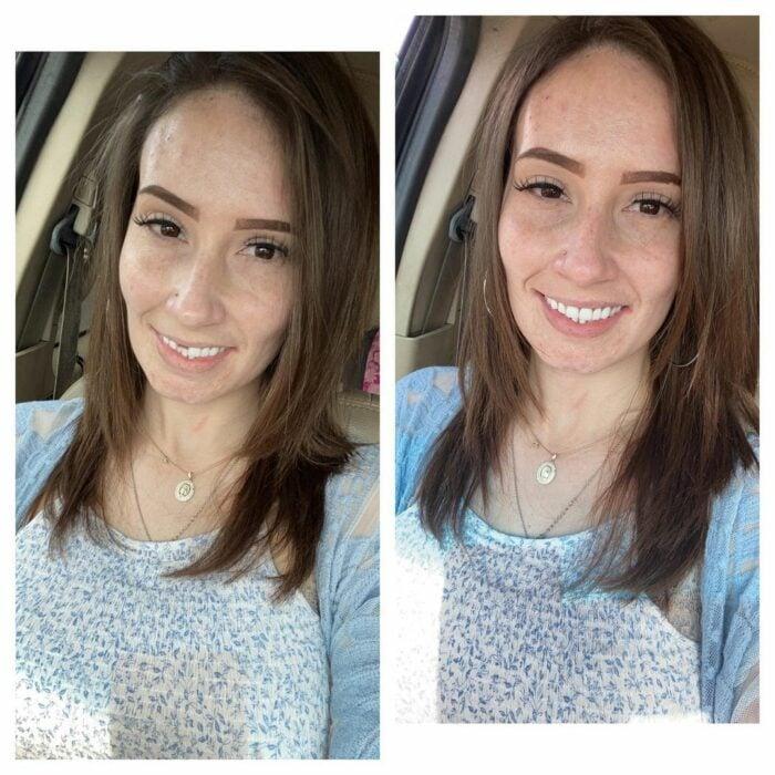 Mujer antes y después de perder sus dientes