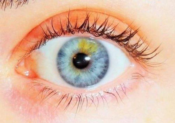Pupila de dos colores ;13 Personas con rasgos tan únicos que te enamorarán a primera vista