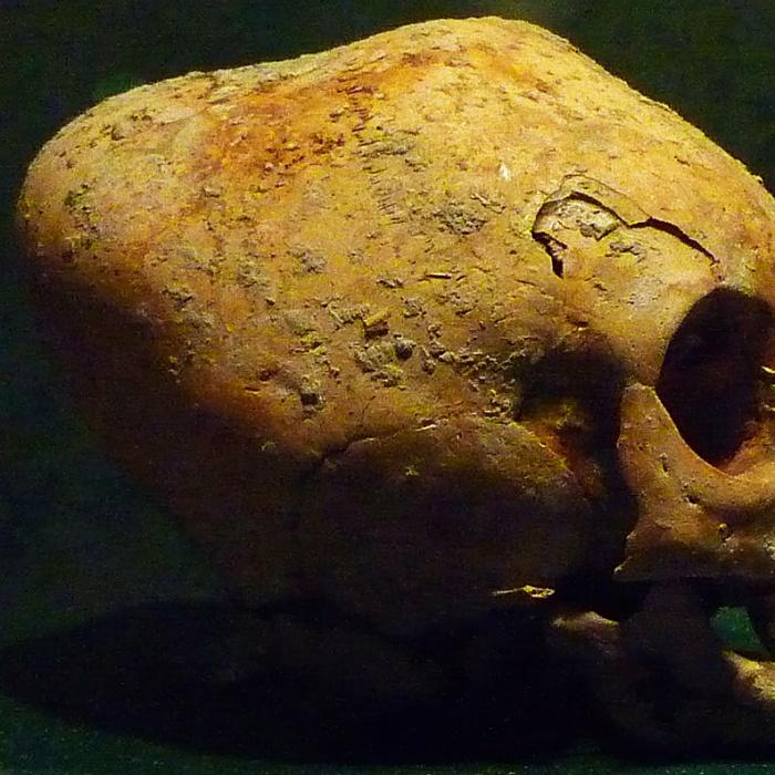 Modificar el cráneo era costumbre