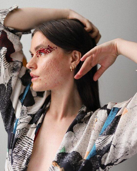 chica mostrando sus imperfecciones; 'Skin positive', el movimiento que hará que ames las imperfecciones de tu piel