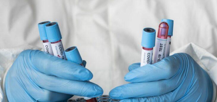 Pruebas covid-19; Un nuevo fármaco israelí contra el Covid consigue curar a más del 90% de los pacientes graves en menos de cinco días
