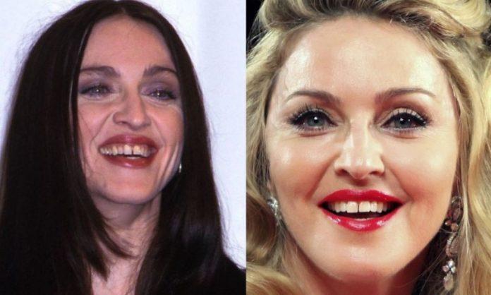 Madonna; 13 Famosos que le deben su hermosa sonrisa al dentista