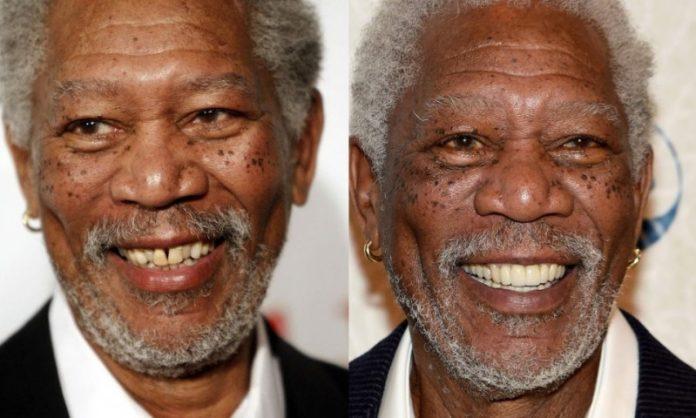 Morgan Freeman; 13 Famosos que le deben su hermosa sonrisa al dentista