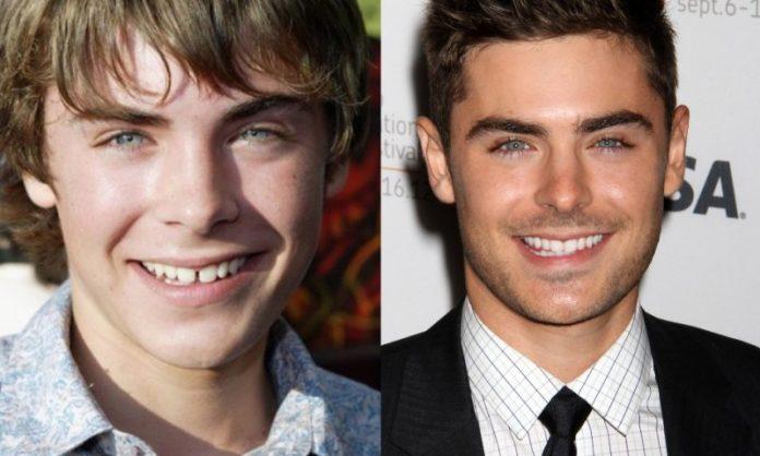 Zac Efron; 13 Famosos que le deben su hermosa sonrisa al dentista