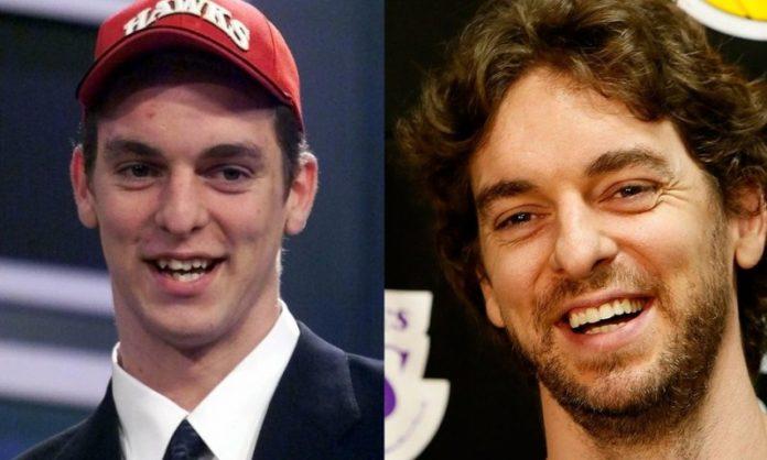 Pau Gasol; 13 Famosos que le deben su hermosa sonrisa al dentista