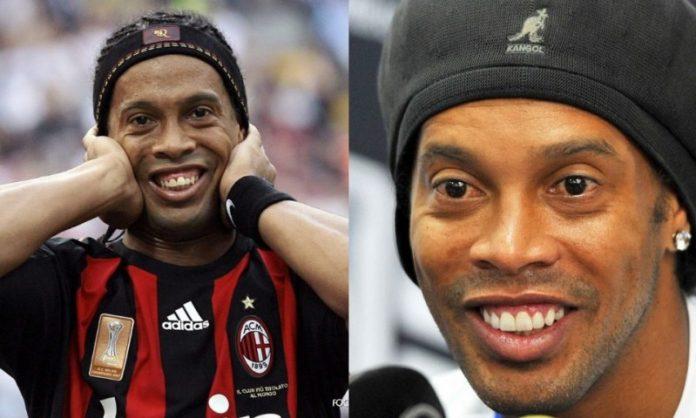 Ronaldinho; 13 Famosos que le deben su hermosa sonrisa al dentista