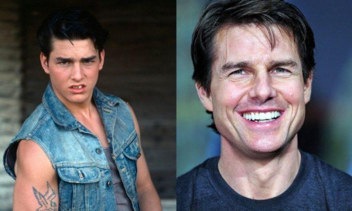 Tom Cruise; 13 Famosos que le deben su hermosa sonrisa al dentista