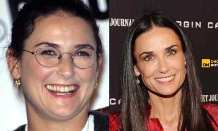Demi moore; 13 Famosos que le deben su hermosa sonrisa al dentista