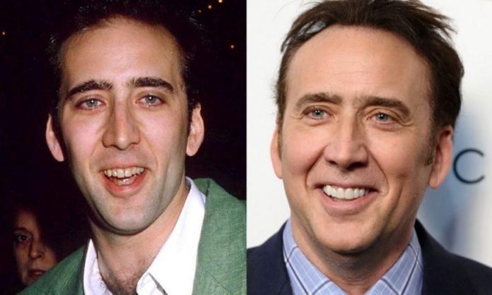 Nicolas Cage; 13 Famosos que le deben su hermosa sonrisa al dentista
