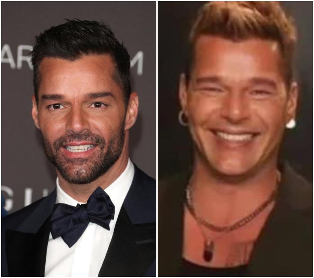Ricky Martin antes y después; La apariencia de Ricky Martin desata confusión en sus fans