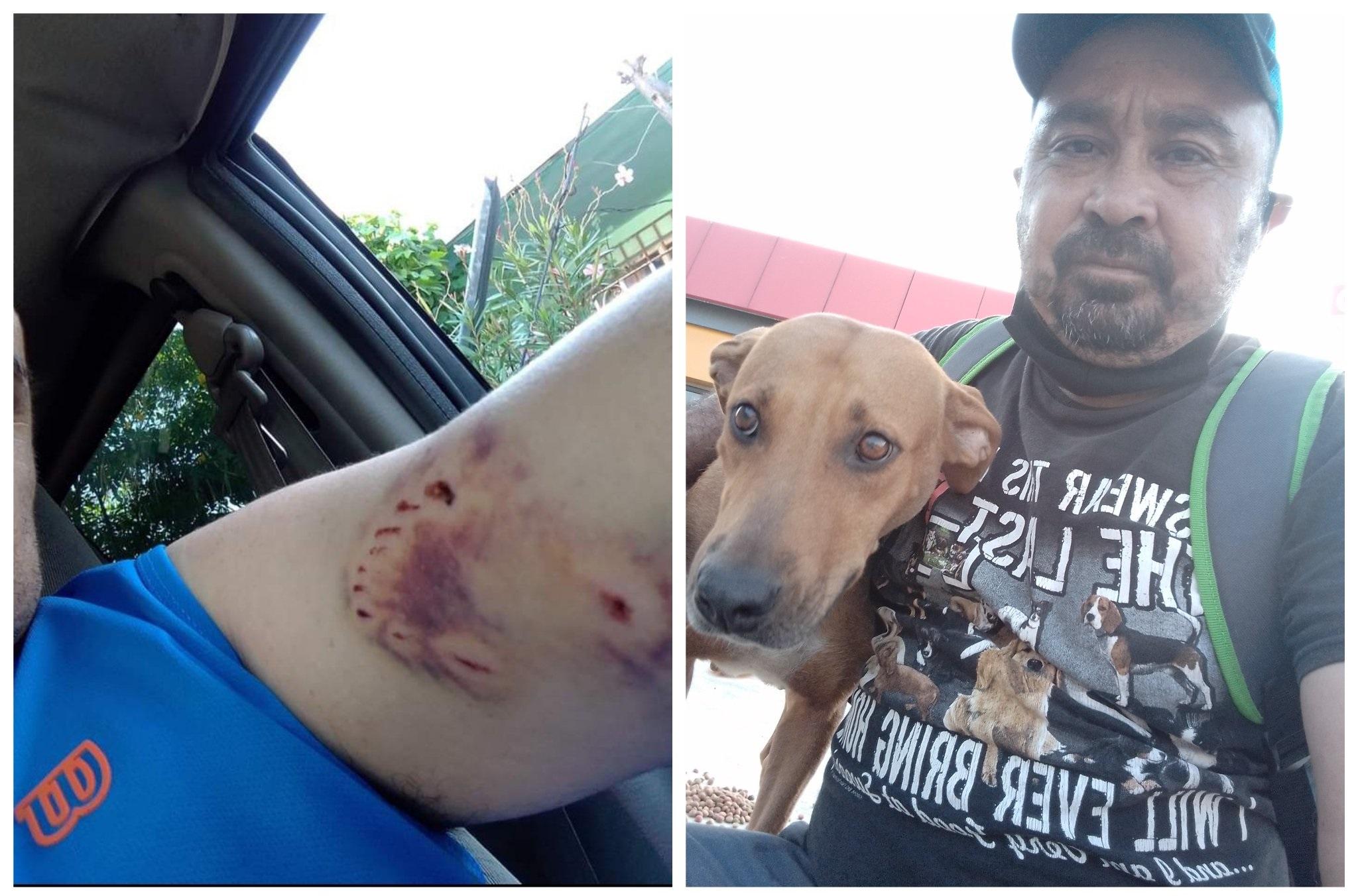 Mordida de perro; Perrita callejera le muerde un brazo y ahora le lleva comida todos los días